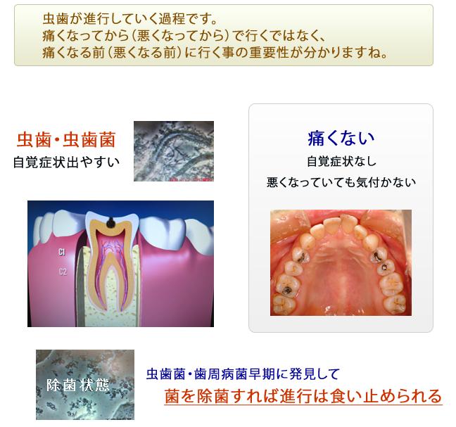 むし歯が進行する過程
