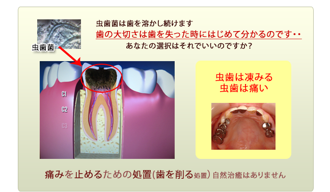むし歯が進行していく過程2