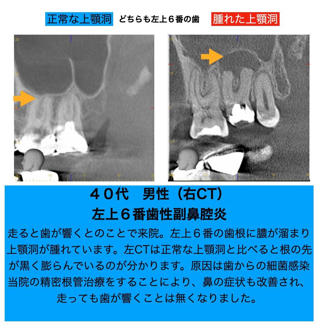 歯性上顎洞炎