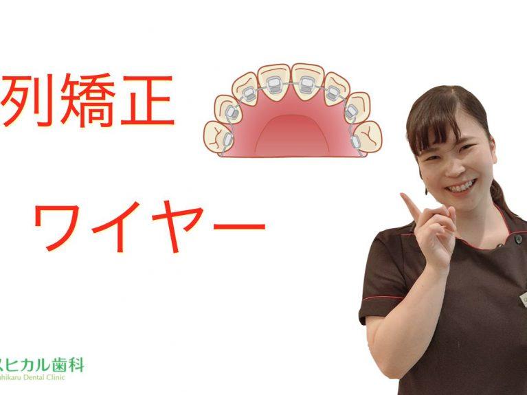 歯列矯正ワイヤーのアイキャッチ画像